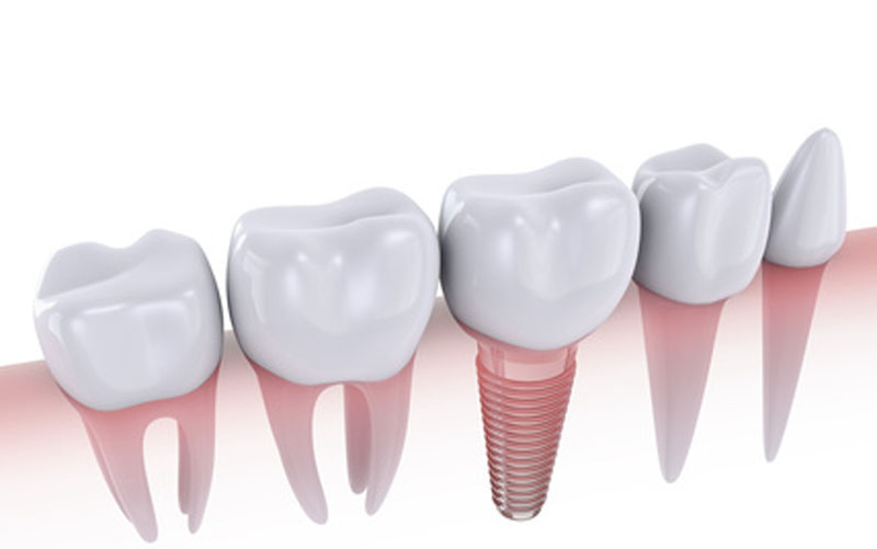 dental implant | marpole dentist
